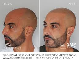 pics of scalp micropigmentation on people with long hair amazing transformation only 3 sessions and a perfect result smp