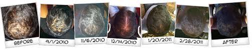 rogaine for women success stories official hairgenesis web site numerous success stories men