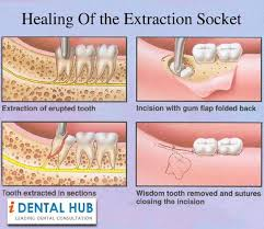 the healing process of the extraction socket starts immediately