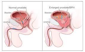 prostate cancer treatment pdq patients siteman cancer center