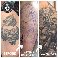 medlite c6 laser tattoo removal best tatto 2017