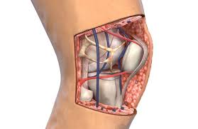 Lateral Patellar Ligament Patellar Tendon Tear Causes Diagnosis And Treatment