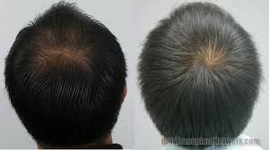 thai male results of hair transplant surgery with 3288 grafts