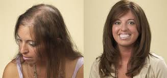 before and after thinning mens haircut cincinnati hair loss men women hair loss solutions allusions