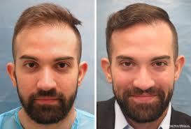 hair plugs for men artas robotic fue before after photos bernstein medical