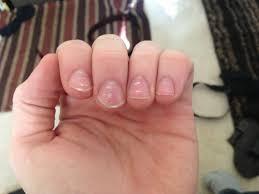 seven fingernail problems not to ignore tebme com