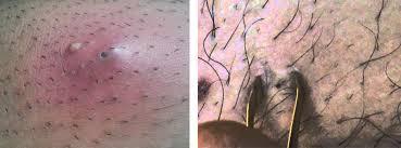 yellow puss filled ingrown hair ingrown hair on scrotum infected pictures ingrown hair bump