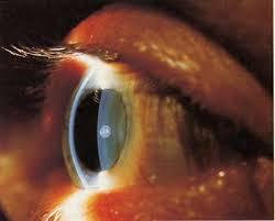 Path Of Light Through The Eye Eye Brain And Vision