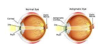 Surface Anatomy Eye Eye Conditions Welch Allan U0026 Associates