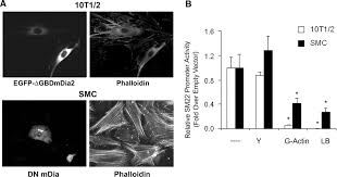 Black And White Texas Flag Diaphanous 1 And 2 Regulate Smooth Muscle Cell Differentiation By
