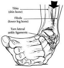 High Ankle Sprain Anatomy High Ankle Sprain Note Io Membrane Physical Therapy