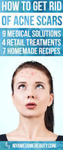 how to get rid of acne scars fast the 20 best treatments and tips