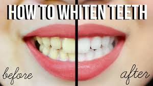 5 natural ways to whiten your teeth girls mag