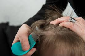 baby oil for head lice livestrong com