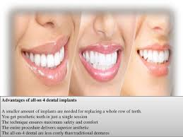 Comfort Dental Las Vegas Let U0027s Talk About Dental Implants In Las Vegas