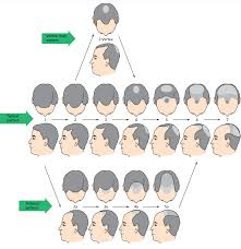 male pattern baldness hairstyles why hair transplantation contura cosmetic clinic