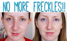10 ways to get rid of freckles on face fast and naturally howhunter