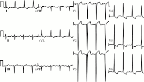 strain pattern ecg meaning the electrocardiographic differential diagnosis of st segment