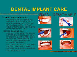 How To Care For Your by Smile Counts Dental Care