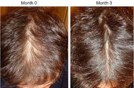 Dandruff And Hair Loss Minoxidil Shampoo Reviews Best Shampoos For Hair Growth