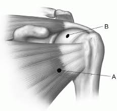 Subscapularis And Supraspinatus Shoulder And Arm Musculoskeletal Key