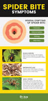 spider bite symptoms how u0026 when to treat them at home dr axe
