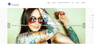 madison laser tattoo removal home facebook