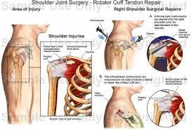 Human Shoulder Diagram Shoulder Joint Surgery Rotator Cuff Tendon Repair Medical