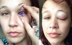 model says she may lose eyesight after botched eyeball tattoo vice