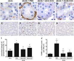 early outgrowth bone marrow cells attenuate renal injury and