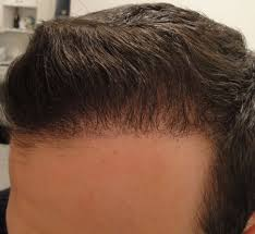 hair transplant month by month pictures 4 months