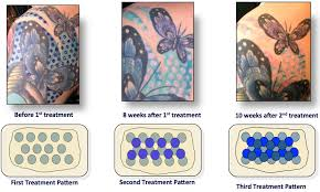 tatt2away painless natural non laser tattoo removal houston tx
