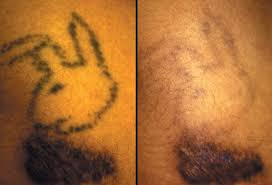 slideshow tattoo safety and safe tattoo removal