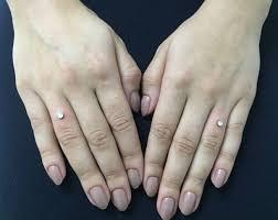 150 micro dermal piercing exles procedure cost