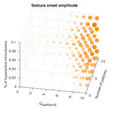 mechanisms underlying different onset patterns of focal seizures
