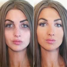 tattoo camo before and after cover up acne makeup to hide acne tattoo scars eczema smart