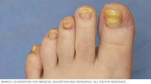 slide show how to trim thickened toenails mayo clinic
