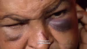 Mulher é espancada e mantida em cárcere privado | Folha Vitória
