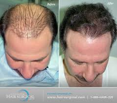 hair transplant america best hair transplant doctors america s top doctors