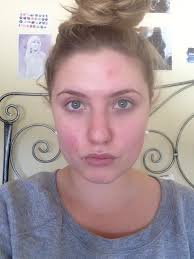 How To Get Rid Of Blind Pimples Help I Have An Ice Burn On My Face From Trying To Get Rid Of A