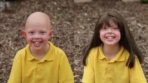 wigs for kids australia alopecia areata foundation