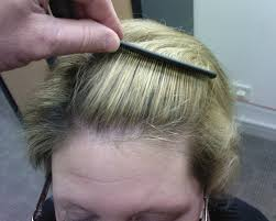 New Hair Loss Treatment Thyroid Hair Loss Regrowth More Info Could Be Found At The