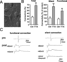 diminished neuronal activity increases neuron neuron connectivity