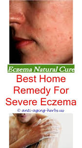 light therapy for eczema varicose eczema what cream is good for eczema eczematreatmentcare