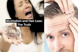 Vitamin Deficiency And Hair Loss Alcoholism And Hair Loss The Truth Aid And Recovery