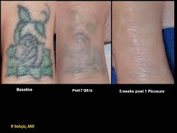 laser tattoo removal charlotte nc saluja cosmetic u0026 laser center