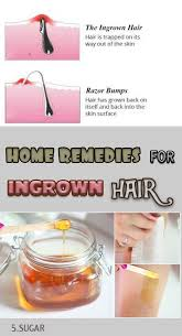 types of ingrown hair the 25 best ingrown hair bump ideas on pinterest smooth skin