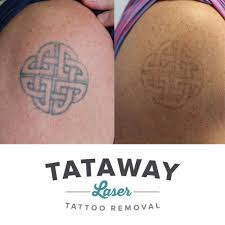pin by tataway on before u0026 after laser tattoo removals pinterest