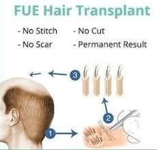 dhi hair transplant reviews cost of hair transplant uk vs abroad reviews prices hair loss