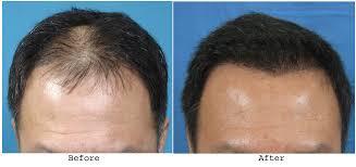 hair weaves for balding men hair weave for men with baldness best hair 2017